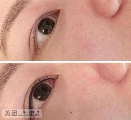 唇部皮肤层次结构图