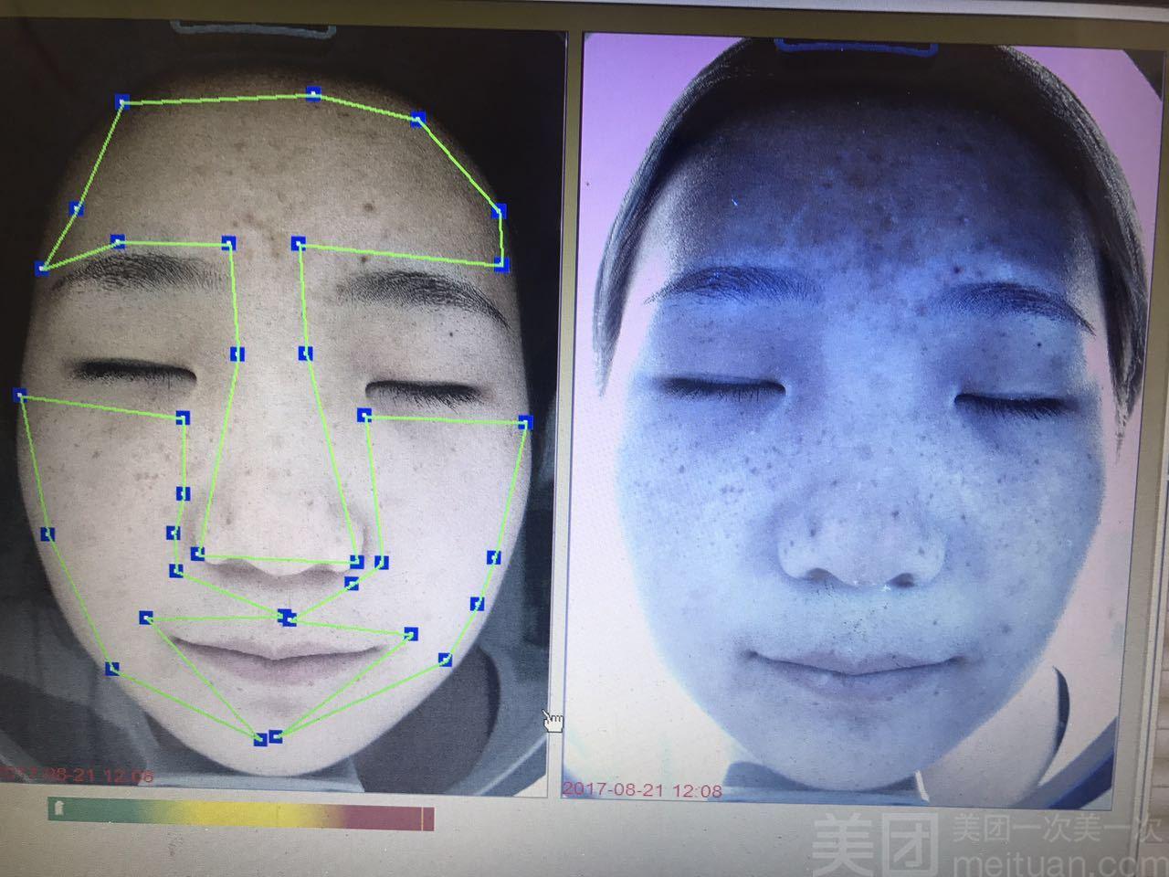 完美蜕变皮肤管理-美团