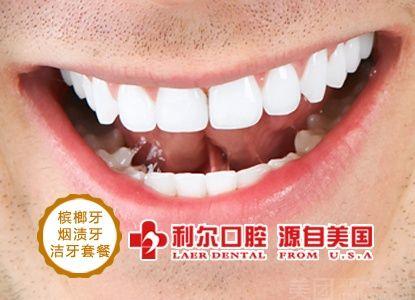 :长沙今日团购:【利尔口腔】单人利尔口腔烟渍牙、槟榔牙洁牙/洗牙套餐