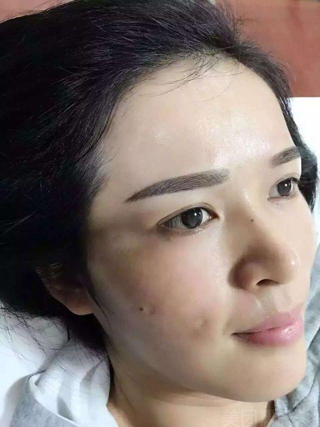 【双眼皮团购】徐州双眼皮-单人双眼皮团购优惠券
