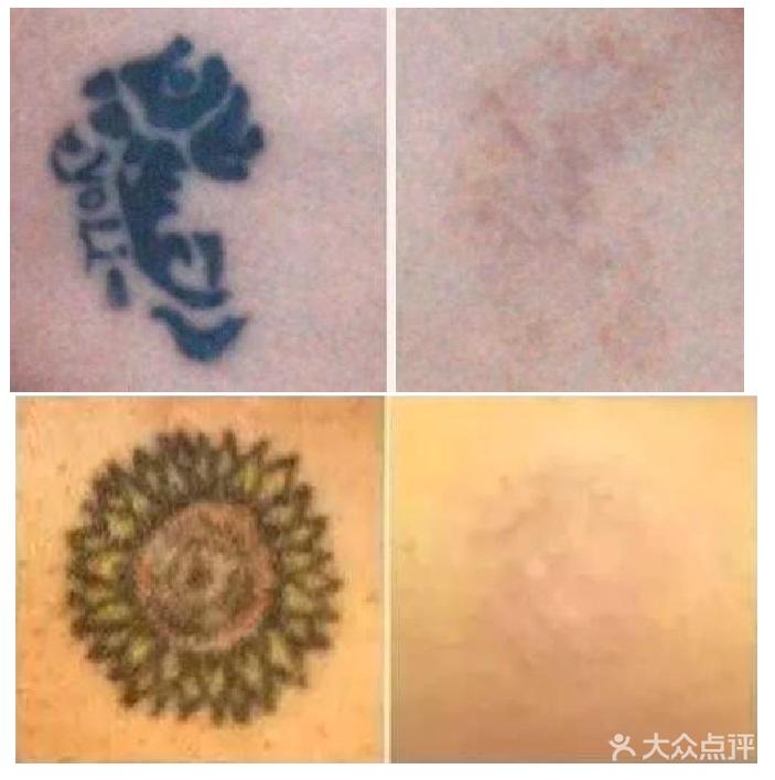 3cmx3cm皮妙洗纹身1次 ☆ 【皮妙洗纹身不止是干净更不会产生疤痕