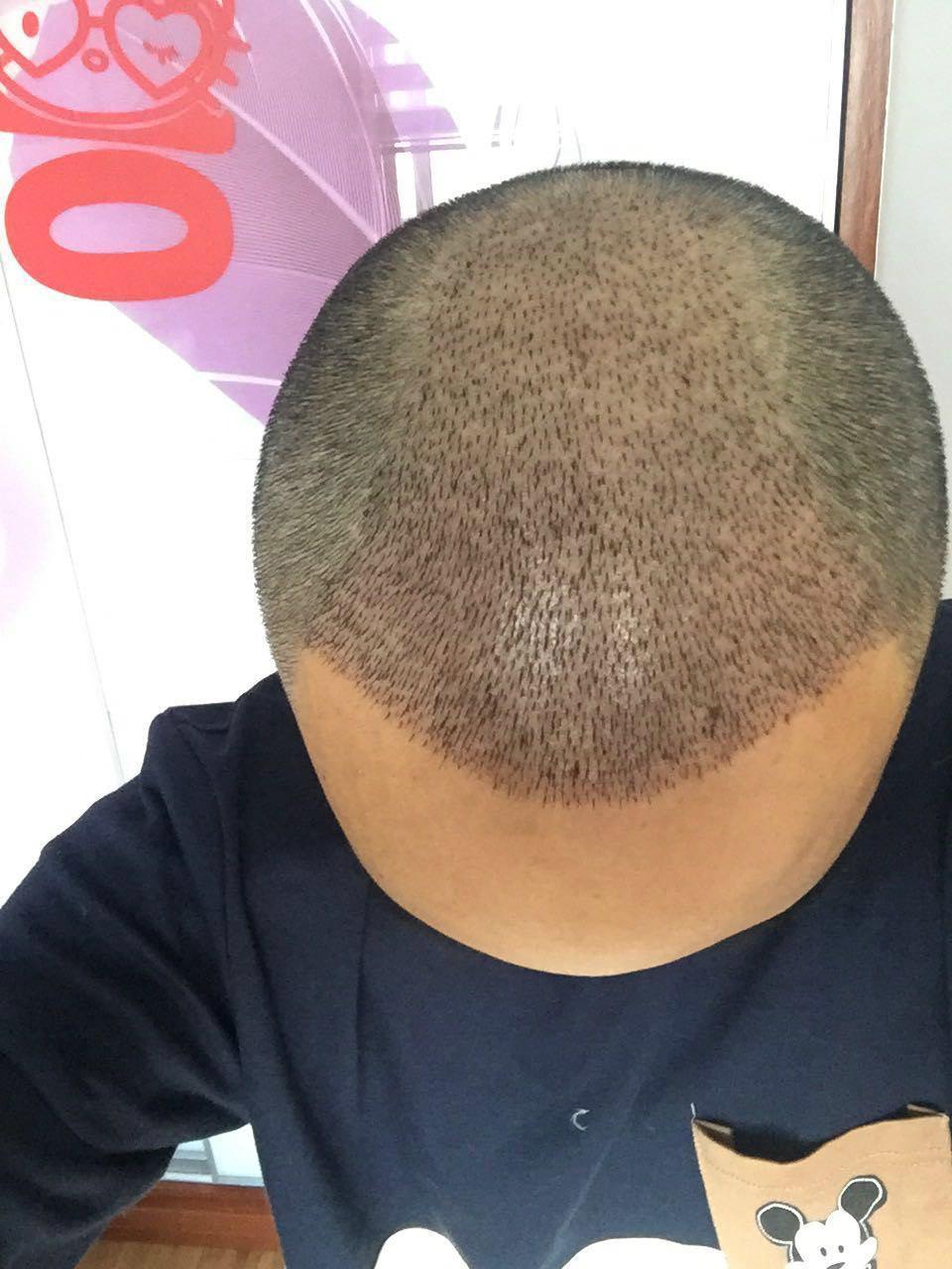 植发后手术帽