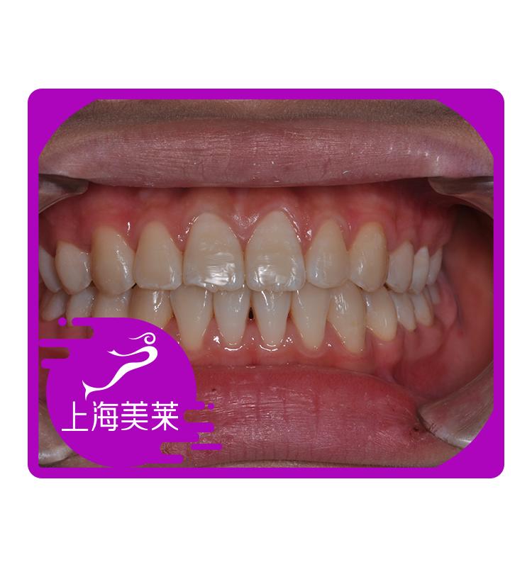 都说做牙齿矫正,不但可以把畸形的牙齿矫正好,还能够有效的矫正脸型!!现在我很爱笑,笑的不在遮遮掩掩,而且越是微笑,我的运气就越好!!!一个矫正给我带来的收获真的是太多了!!
