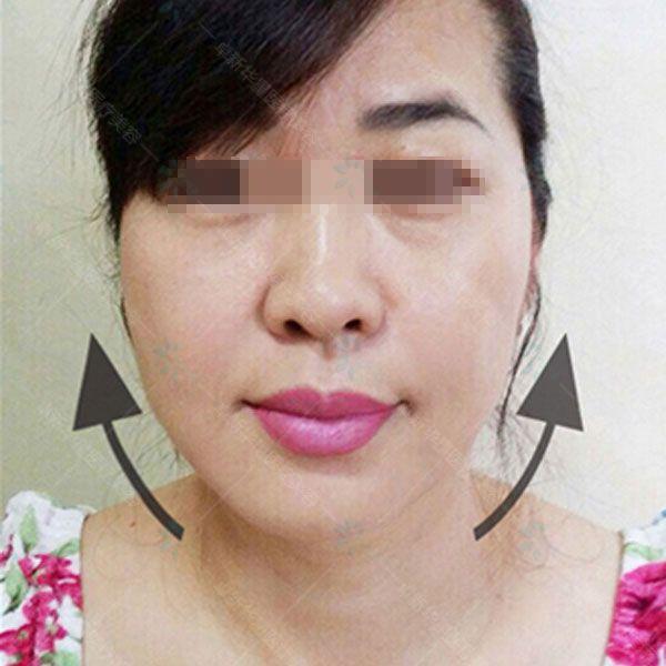 双眼皮治疗一个月