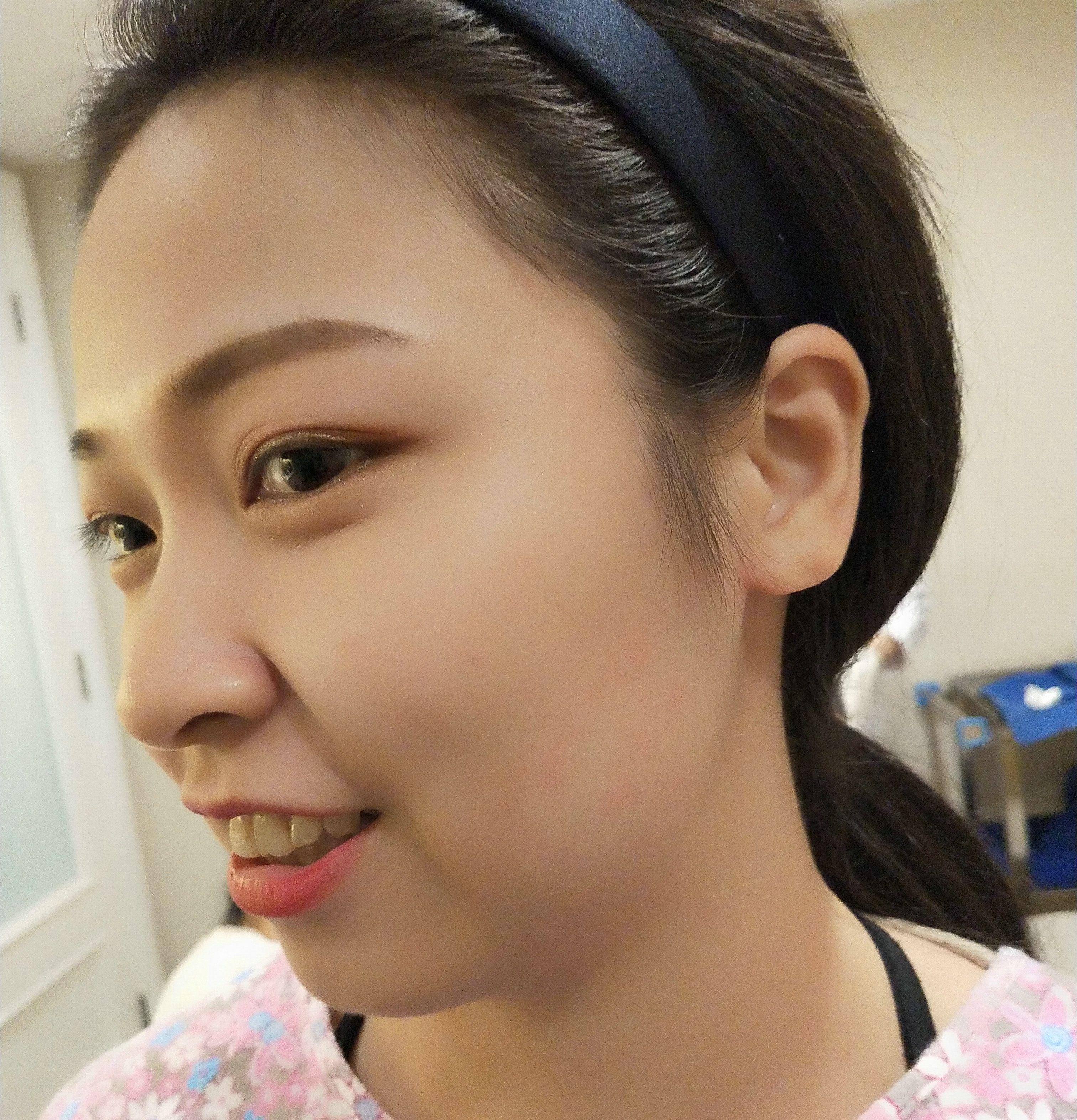 """金医生:""""打瘦脸针不只是要让脸变小,也是要让脸型更顺更好看,皮肤较松的,打了瘦脸可能会下垂,所以要叠加提升一起打,达到紧致V脸的效果。"""" 虽然敷了麻药知道不会痛,但还是很紧张,护士给了我压力球和放了舒缓的音乐,针扎进去的时候能隐隐感觉到,不过很快放松下来了。"""