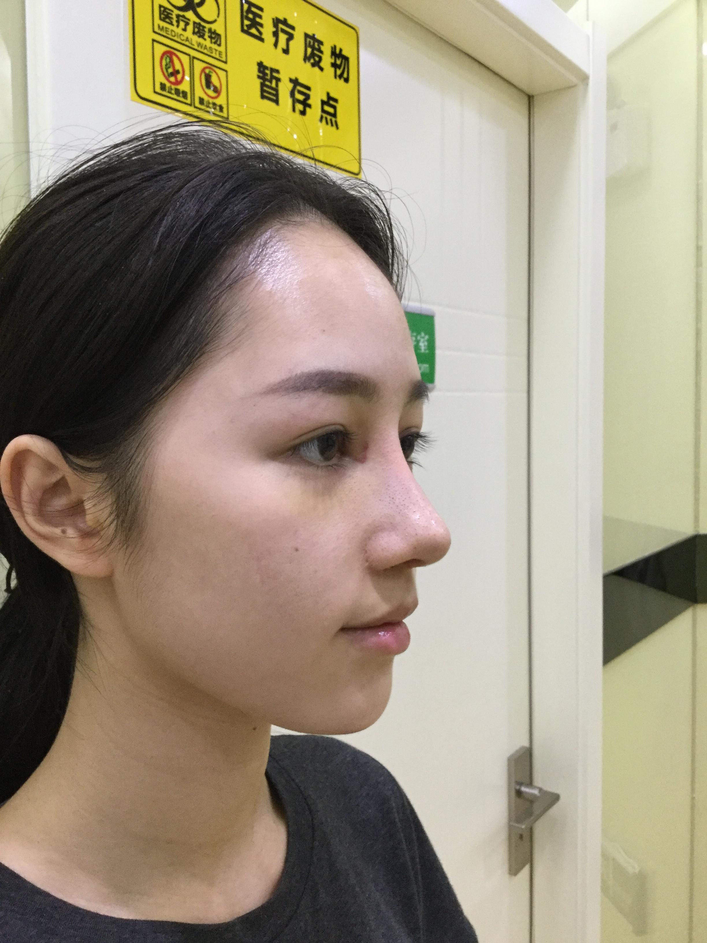 鼻根整形方法