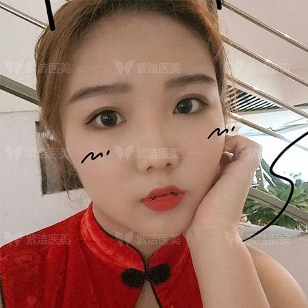 紫洁医疗美容全脸线雕全脸提升术后五个月照片