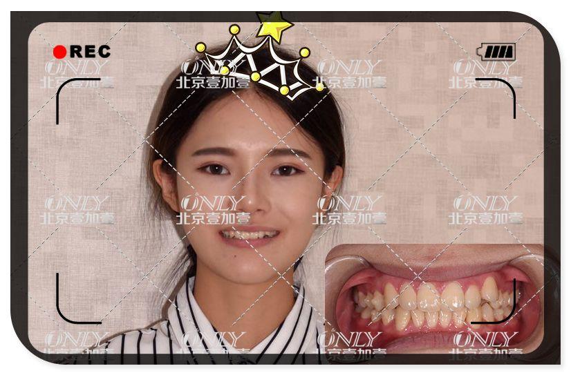 虽然喜欢大笑,但是一口歪牙,破坏了整体的美感~先上图~~ 我纠结的还是我的小虎牙,虽然看着有点小可爱,但是经常一笑就会顶到我的嘴唇,然后导致口腔溃疡,各种的。。。吃个饭都不香~~最终下定决心做矫正! 拍了牙片和头颅片,取了模,医生在电脑上面设计和分析了我的牙齿,制定了矫正方案,我觉得刘医生超帅的。很温柔很和蔼。 然后就是等待半个月后的方案跟牙套啦!