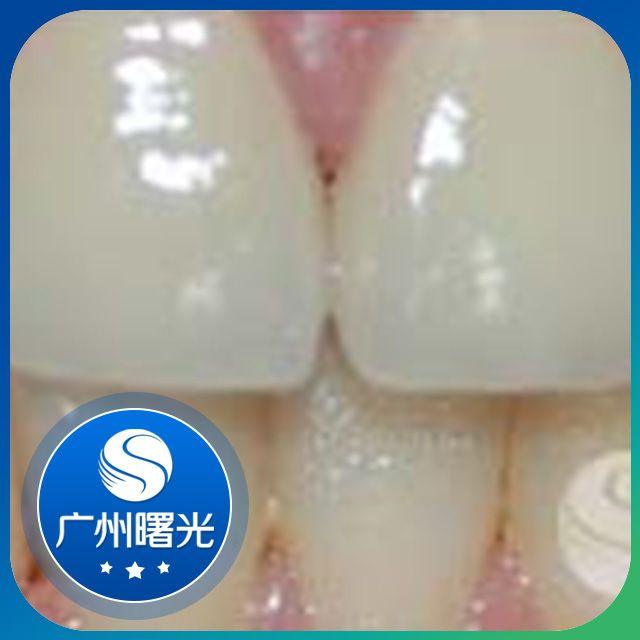 超声波洁牙可以去除牙齿污垢,让牙齿恢复到正常色泽;在治疗的同时内外按摩牙齿,起到保健牙齿的作用。