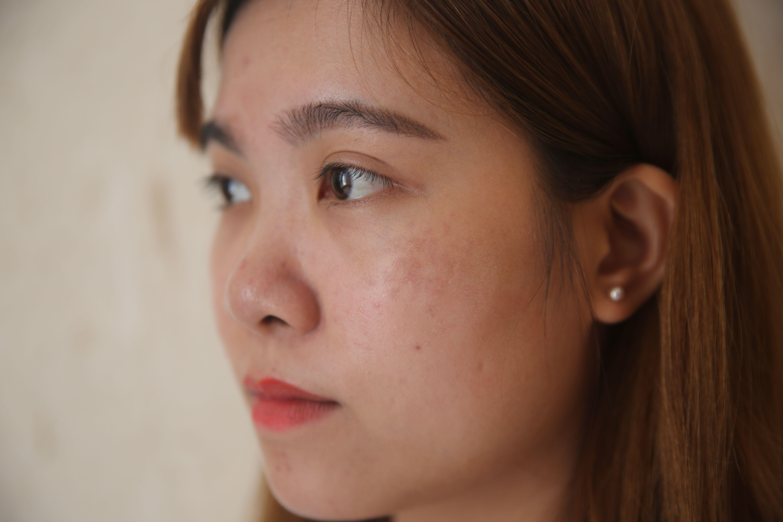 斑结痂脱落后,小玲的脸蛋看上去比以前干净干净了许多,有些还在的斑点也变浅一些。要完全祛除褐青色痣需要做一套完整的疗程。