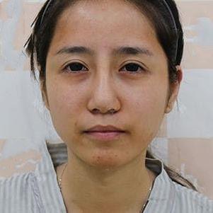 京都时尚自体脂肪全面部填充术前案例高清照片