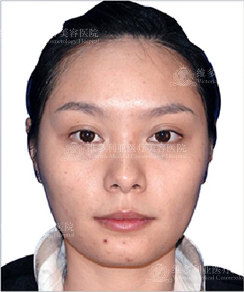 失败双眼皮6个月了,度日如年的感觉,终于在来杭州维多利亚做了修复,做手术的时候眼睛特别敏感,但是医生非常认真负责,做出来的效果相当的满意,形态很好。因为效果太好的缘故,今天又过来做了隆鼻,丰下巴、苹果肌,还打了瘦脸针。期待之后的效果呢。