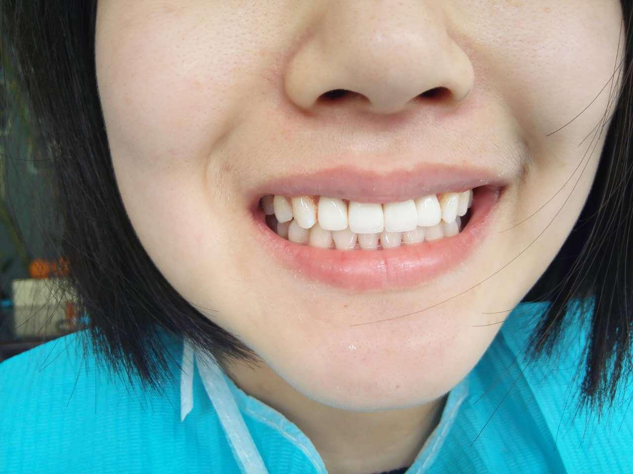 顾客带上牙齿之后,觉得整个心情都不一样,看着镜子里的牙齿,越看越图片