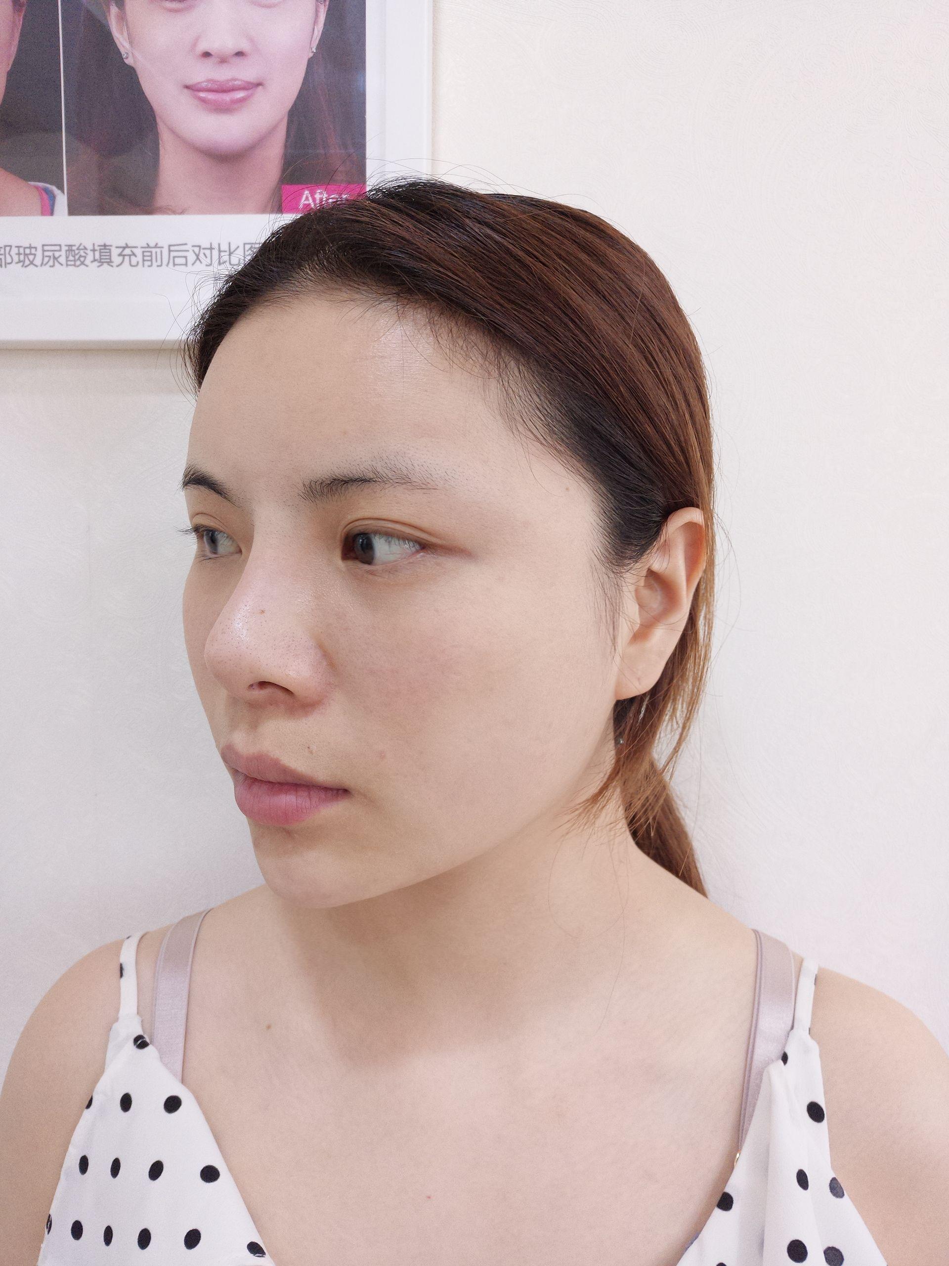 刚注射完瘦脸针和下巴,立刻就有了尖下巴哦,真的显脸小了呢,瘦脸针还要过段时间才能显出效果呢,期待~~马上就要去做隆鼻手术了呢,还是有点小紧张的哈