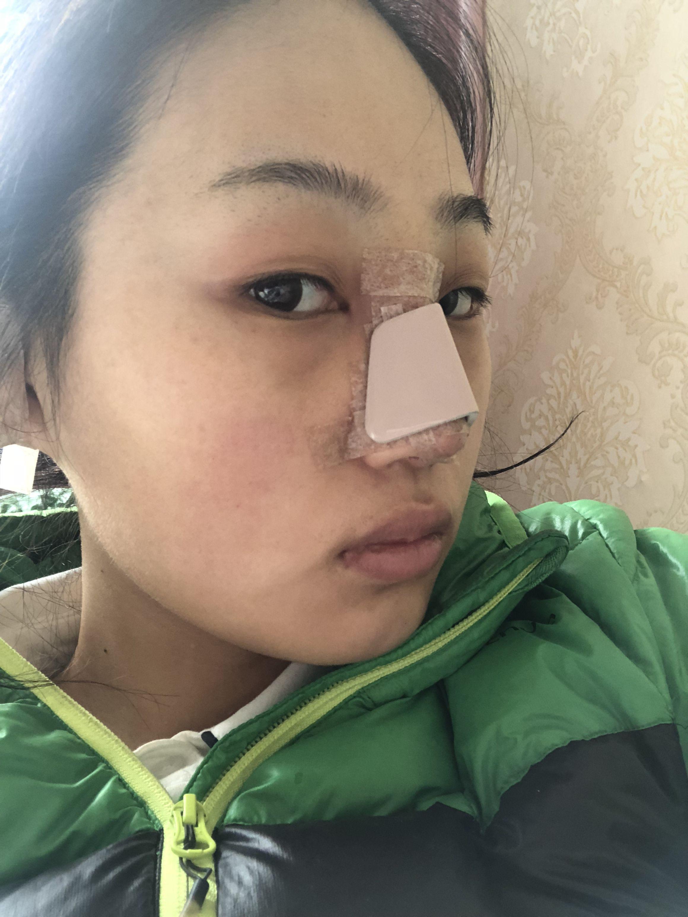 今天是隆鼻后的第2天 我居然仍旧一点也不痛,鼻子轻微肿胀,没啥感觉,早上起来扎了一瓶消炎针,正常要输五天,鼻子也没有分泌物,几乎没淤青,我的天真的很欣慰,上图