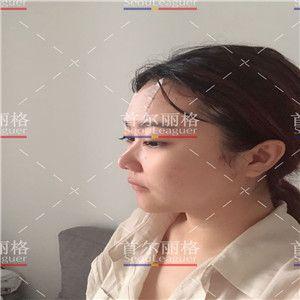 大家好,我叫琪琪,为了这个手术我准备了很长时间,之前一直都是塌鼻子,就查资料想把鼻子整体提升。我正面看的话还是可以的,但是侧面真的是不忍直视。 为此我找了很多家做鼻子的医院,大浪淘沙之后终于确定了首尔丽格这家医院,大家都知道韩国整形真心不错的。 面诊的医生很亲切,也很专业,给我提出了很多的建设性的意见。当天做手术觉得自己很痛苦,没想到一睁眼一闭眼就把这个手术做完了。麻药过后也没有很疼,还是能忍受的范围内,期待自己慢慢恢复。