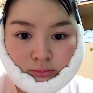 脸大一直是我的痛,咨询了无数医生,终于下定决心做埋线了,面诊之后医生建议我先吸脂 埋线。手术之前还是很紧张的,不过也就是睡了一觉就结束了,现在就是静静的等着恢复了。