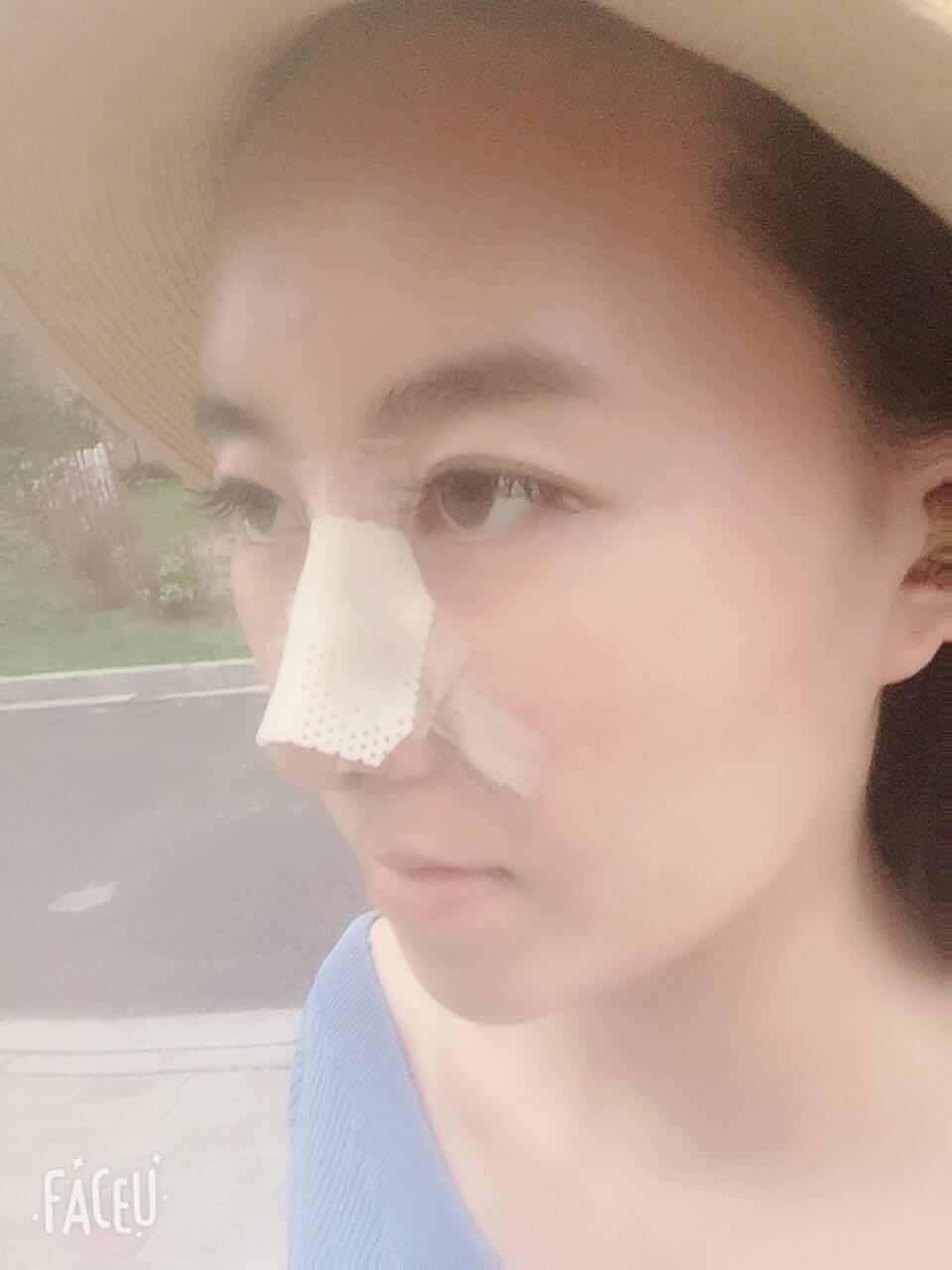 手术前就和姑娘讨论了手术方案,她的底子不错,不需要太大的改变,用耳软骨把鼻尖垫起来就能很好的挺翘起来,手术过程很顺利,术后即刻的效果姑娘也很满意,说是她想要的鼻型。