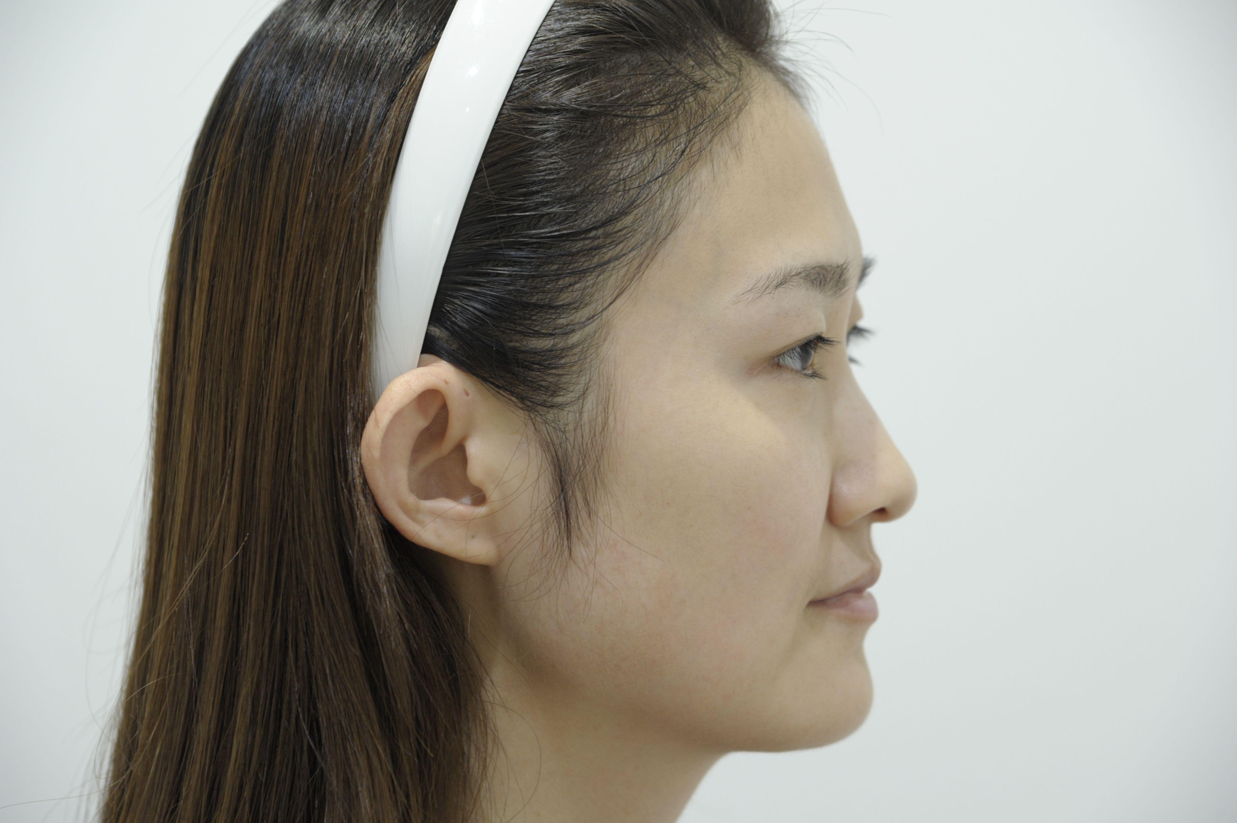 皮肤比以前通透了很多,之前的色斑开始有一点点微微的浮上来,医生说这是正常的,过几天就会被皮肤代谢掉了!所以好期待之后皮肤会慢慢变好哦!做完激光祛斑术后一定要记得涂防晒,不管化不化妆,因为激光做了以后皮肤会更容易吸收紫外线之类的。