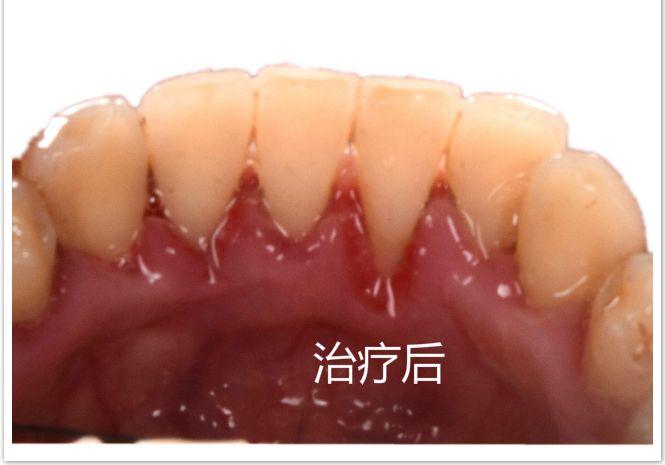 该男士的牙齿整体状况不太好,下牙有比较严重的牙结石,尤其是中间五颗,且面积稍大,不断往牙龈下面蔓延,如果任由其发展,最终将会导致牙龈萎缩和牙齿松动。此外,由于吸烟的缘故,所以上牙和下牙都有明显的烟渍,这些依靠普通的刷牙是不能清洁干净的。因此,先对其进行口腔消毒,再用超声波将大块牙结石清除,下牙在去除牙结石后部分牙根暴露,这是因为牙石刺激牙龈退缩引起的,所以要早去除牙石对牙有好处,这种情况不用担心,接着再采用喷砂清洁附着在牙齿上的烟渍、茶垢等色素,在洁牙后会感觉牙齿表面有些粗糙,最后再进行抛光处理,这样一次完整的洁牙就结束了。从图片上来看,洁牙前后的对比是非常明显的,在去除牙结石和色素后,牙齿更加干净和健康了,当然这不是一劳永逸的,还需要平时注意保护,养成早晚刷牙的习惯,这种经常吸烟的情况,一年内建议洁牙2次,这样就能很好地维护牙齿的健康。