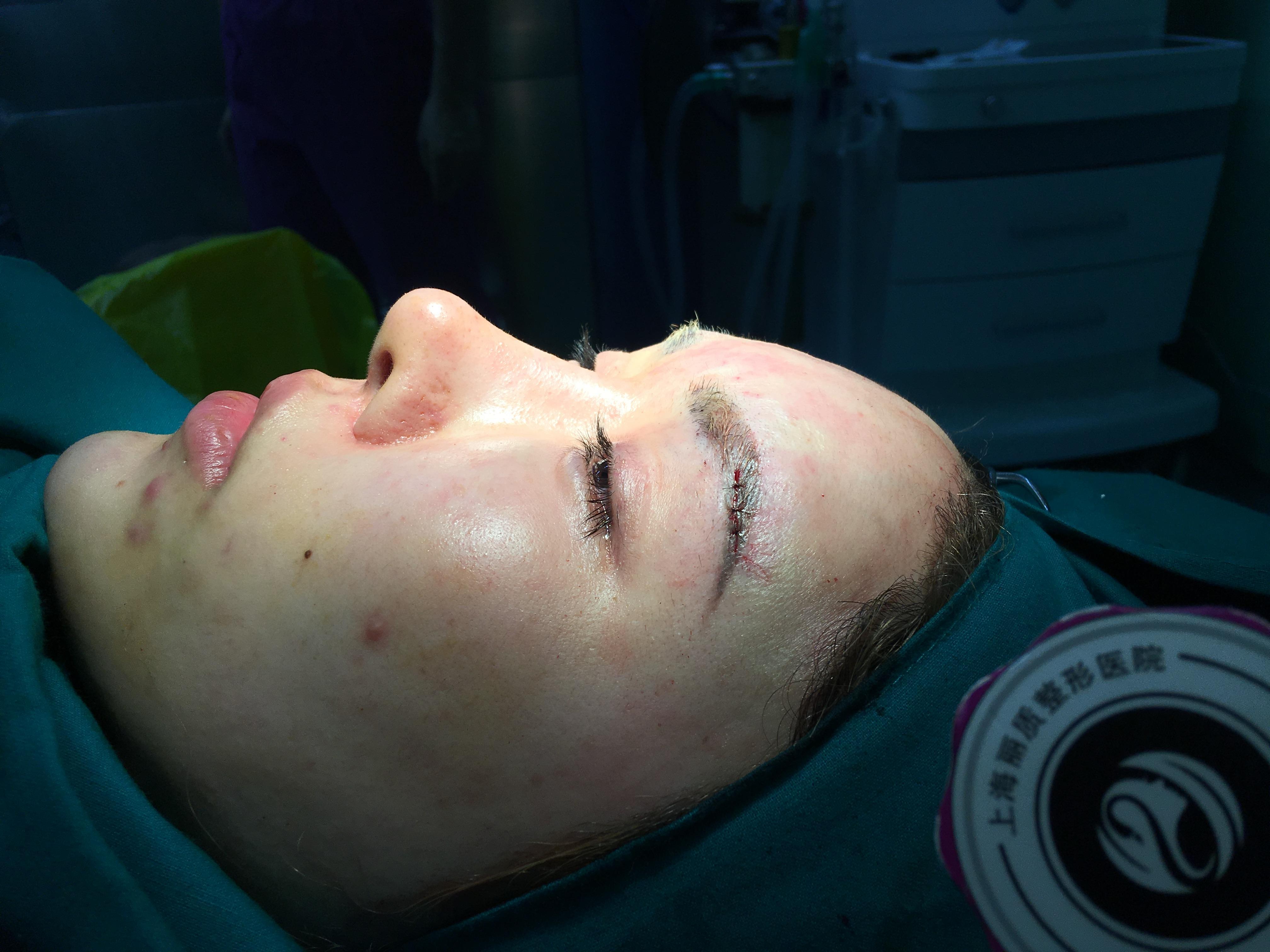 以前眉弓可以说是没有的,额头打的全是玻尿酸,可能是下滑了,然后跑到眉毛上了,反正就是不是很好看了,感觉眉弓配不上我的大脑门和鼻子。网上查了一下,假体丰眉弓真的是很稀有了,连百度百科都没有,然后就上网搜索到了丽质的假体丰眉弓,本来做眉弓的就真的好少了,综合对比了几家,最后还是来了丽质。网上说是硅胶比较重,然后又有可能会压眼睛压神经什么的,跟鼻子是不一样的,在眉毛上放个东西,还是要慎重选择的。到了医院,面诊医生也说,膨体更轻一点,融合性更好,更柔软,反正做都要做了,放个普通的也是放,放个好的也是放,体会是不一样的,所以就选择了膨体。准备手术。见了卢院长,人非常好的,很和蔼的赶脚,问了我想要的感觉,我说我要夸张,夸张,夸张的。。打麻药真的是很疼!!但是过程是无感的,手术做完了让我看了一下效果,两个眉毛有点形状不一样的,卢院长很耐心,又让我躺下来给我调了好久,然后又让我看,我感觉可以了,手术才结束 。