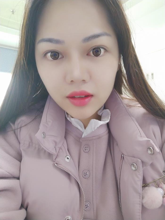 术后一个多月,Q小姐的眼周肌肤看起来非常有弹性,使得她看起来年轻了许多