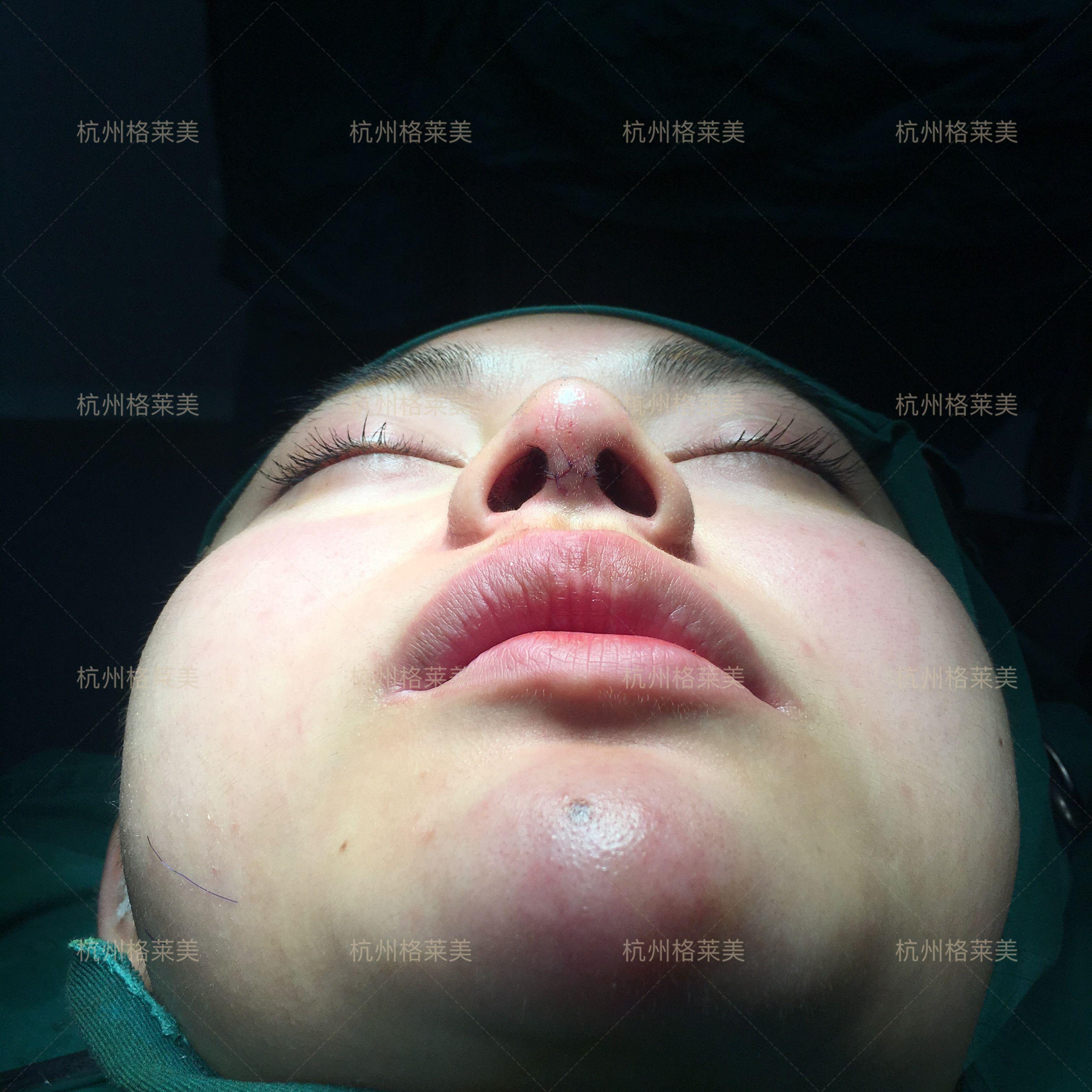 鼻子整形千千万,但像我这样只想改善鼻头的不多吧,我的鼻梁蛮高的,就是嫌弃鼻头不好看,圆圆的看起来笨笨的,本来是挺有个性的一个人,因为鼻头气场都削弱了,也很影响妆容的精致度。因为在杭州读书,对这边比较熟,知道哪家整形医院鼻子做的好,所以有这个想法后不久就去做了。手术做好将近半个月了,我慢慢整理下思路,把恢复期的一些感受和照片一起po上来哈。关于手术,医生说鼻尖这块塑形能力好的是肋软骨,我比较保守选择了耳软骨,为了让效果更好,整体更和谐,鼻中隔和鼻小柱也做了调整,局麻的,我建议如果是做大综合隆鼻手术,或者项目里有调整鼻中隔的,一定要选择睡麻,还好我对麻药比较敏感,没觉得疼,后面也没有加麻药,手术顺利完成。一个鼻尖拯救了一个鼻子,我想说这也太好看了吧,不是自恋哈,完全是被医生的技术折服!