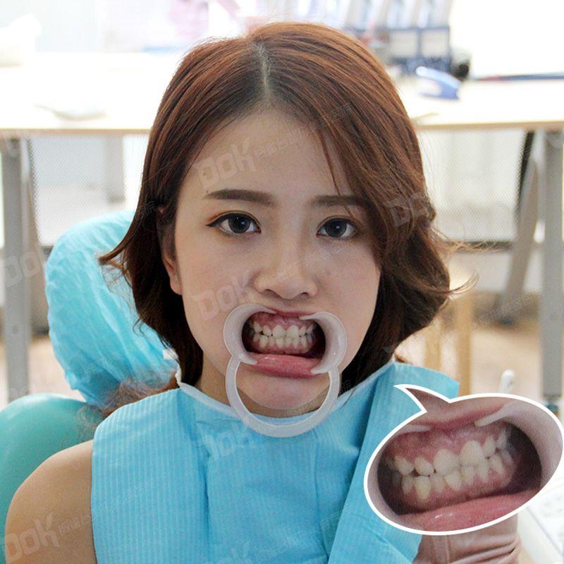 天生牙齿就有点乱,又不想做矫正嫌麻烦,偶然的一次机会看到朋友在铜雀台做的隐形矫正效果还挺好的,不过我的牙齿没她那么差,医生就建议我做美容冠,好期待牙齿整齐的效果。