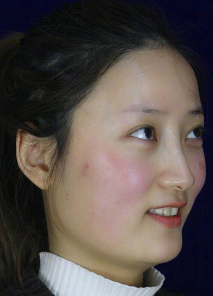 脸大带来的不方便是真的有很多,亚洲人都希望自己的脸小小的,不像国外的小姐姐脸型都偏大,但是她们五官立体化妆化出来是真的特别好看,很有气质,我又没那气质也化不出那种感觉,所以怎么看怎么不好看,一直很烦恼,身边的闺蜜都是小脸,人家怎么扎头发都好看,我很少扎头发,放下来也感觉自己的脸很大,我喜欢圆圆小小的脸,后面存够了钱就准备去做下颌角切除手术了,选择南医大友谊医院是因为它是南京一家有资质做骨骼手术的,我要变美更要安全~