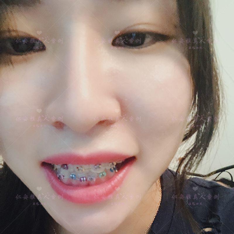 【顾客术后分享】 今天是带牙套的第1天,【金属牙套】主要问题是上牙突出,下牙不齐,已经23岁了吗,但是还是毅然决定的开始我的箍牙道路,感觉自己的胆子好大啊,想来分享一下自己的牙齿矫正过程    我拔牙一共拔了四颗,分两次拔得、拔过牙休息了一周先上的上牙套 倒是稍微有一点酸 但是最后两颗大牙开始的时候没上钢的托槽 我的主治大夫说是为了我更好地适应 要分开上 对效果也没有影响 所以先上的上牙套 过了半个月又上的下牙套 下牙套上过了之后整个人都不太好了(T_T)因为下牙不整齐所以戴上了很紧 很酸还会有点疼 我大概换了一周才好 什么都咬不动楼主看着美食暗自流口水加泪水啊。。现在好了很多但是还是没办法咬(╥﹏╥)