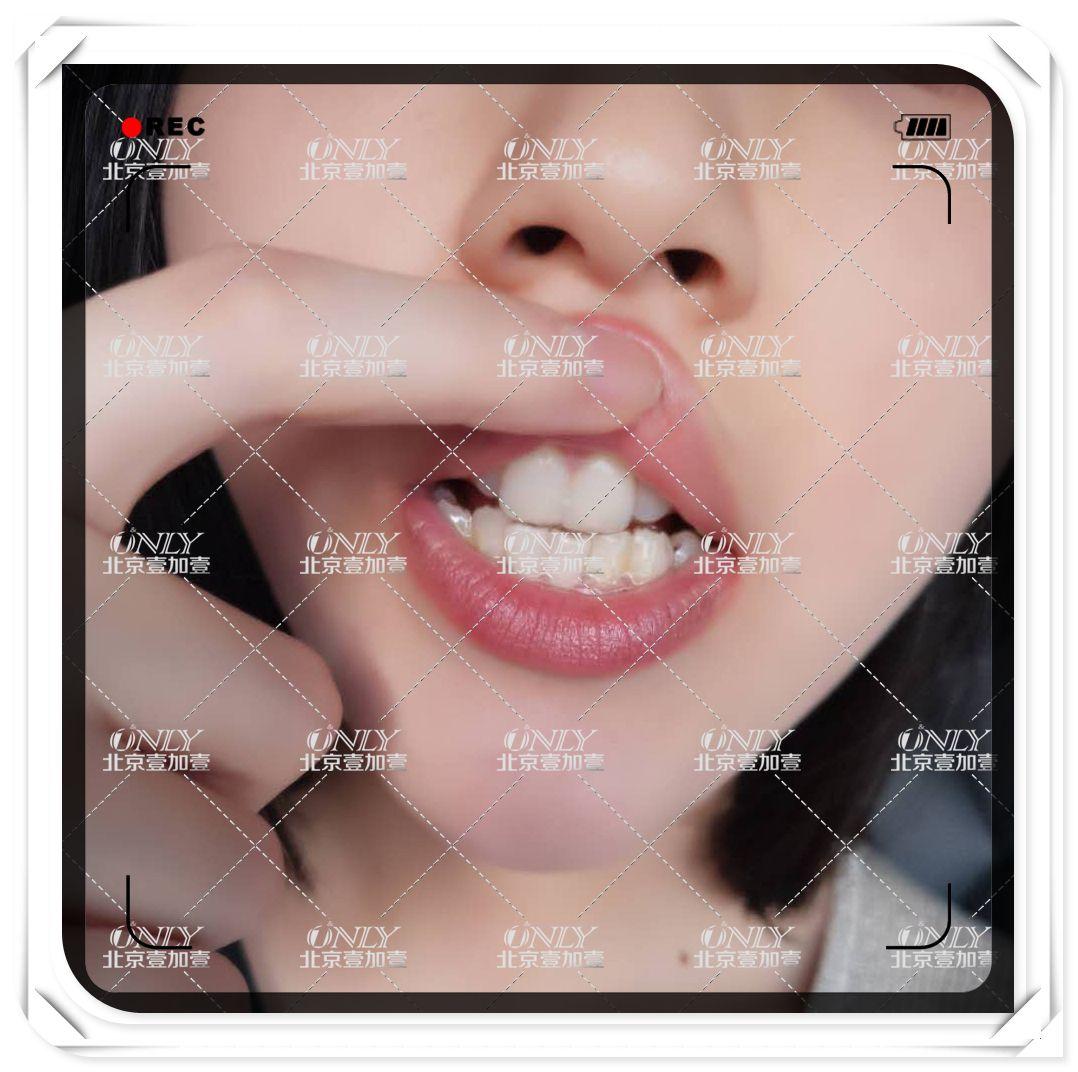刚戴上有那么一点不习惯,总感觉嘴里面有东西,还时不时的流清口水,哈哈哈哈哈,大家看看能看出我戴了牙套吗?这是戴好当天在医院回家车上拍的,牙齿上面有点黄色的东西,那是切片之后医生给牙齿上的药。后来慢慢就适应了,每天几次取戴都非常熟练,每天要坚持戴20-22个小时,也就是说除了吃饭时间,平时都要一直戴着。给大家看看牙套一副分上牙套和下牙套,是根据自己牙齿的形状来定制的,乳白色那个柱状物就是咬胶棒,戴上牙套之后放嘴里一直嚼,直至牙套和你的牙齿完全贴合。牙套在吃东西之前取下来,吃完之后刷了牙齿洗了牙套又戴上,非常方便,以前没有早午饭后刷牙的习惯,只是早晚刷两次呀,现在一天最少刷牙4次,一年以后不带牙套了也会养成饭后刷牙这个好习惯,而且还有哦,戴了牙套也会防止你乱吃东西,管住嘴,这样就不会担心长胖啦~