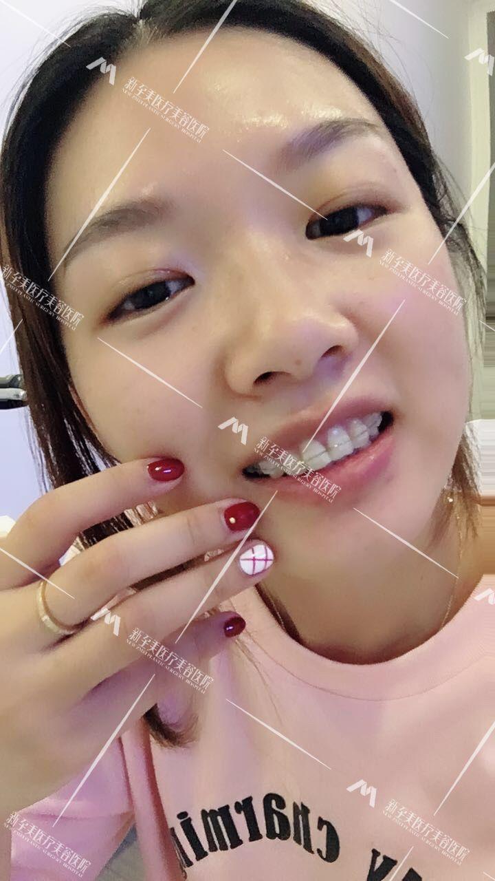 牙齿矫正术后18天,顾客对效果很满意,已经完全适应,注意后期保养,定期来院复查,随时反馈效果。遵医嘱.