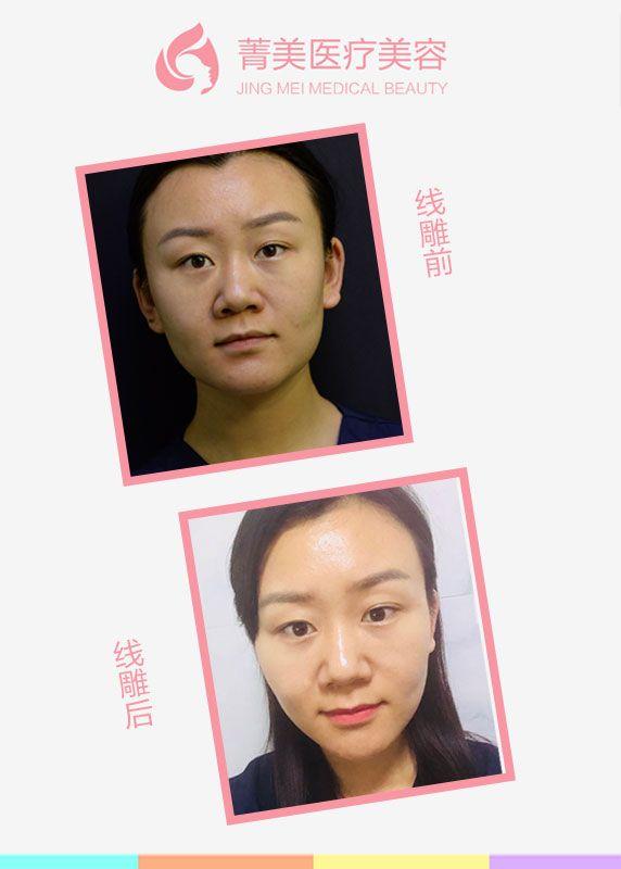 PPDO立体线雕焕颜以注射针头为依托,采用可吸收高分子蛋白线,根据衰老程度以及个人皮肤老化的纹路方向,采用多方位、多点式,将PPDO线交错植入真皮层和皮下组织之间,重建人体面颈部年轻紧致的立体架构,并促进肌肤血液循环、胶原蛋白重生、色素隐退,肤色提升,充满弹性,让老化下垂的肌肤瞬间达到拉提、紧致、嫩肤的效果。