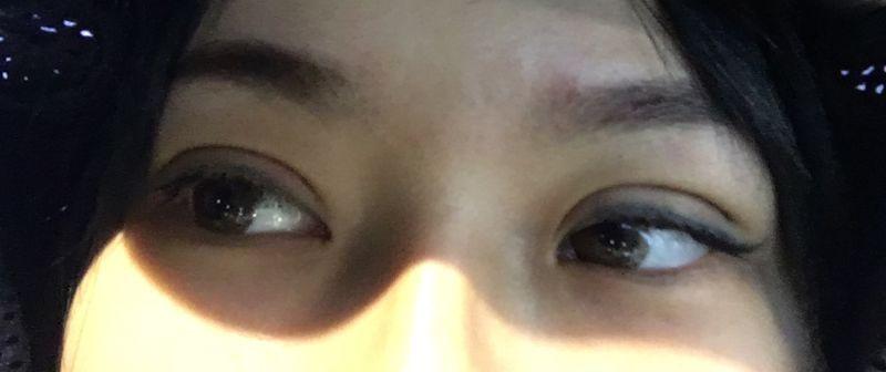 为了出门显得好看一些,还是有涂眼睫毛。涂的时候都比较小心,不让液体沾染伤口。 不过目前能明显感觉伤口一天比一天好。估计差不多2周内会基本消肿