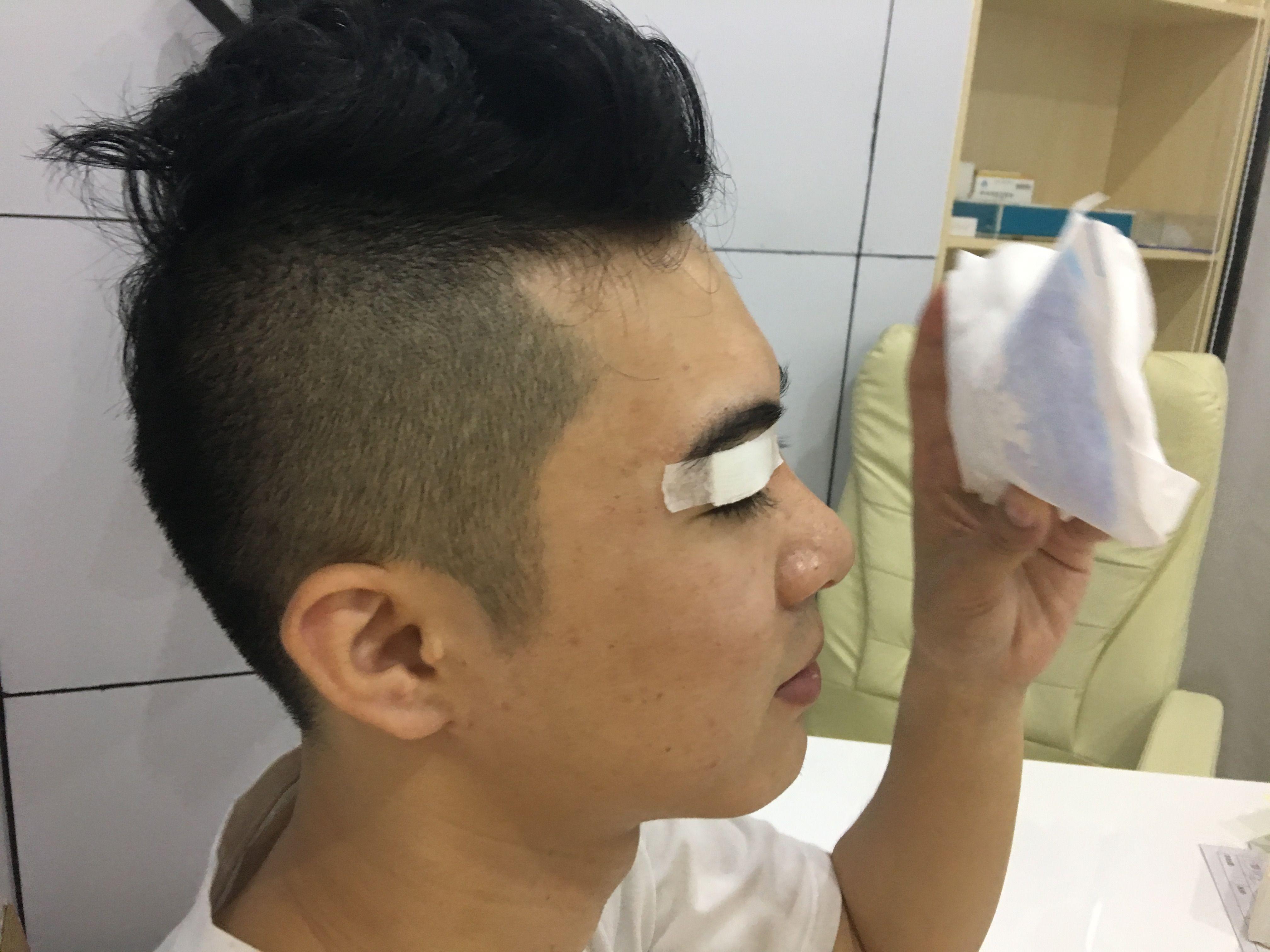 一直想做双眼皮,对比了很多家,最后选的广州飞悦医院,朋友之前也是在这里做的,效果蛮好,技术真心不错,所以在咨询了一段时间后终于鼓起勇气躺上了手术台。 其实做之前我的眼睛并不小,肿眼泡,一只内双一只外双,像没睡饱似的。手术过程十分顺利,不到小时就完成了,完了之后刘院再三叮嘱我注意休息,注意饮食,前三天会肿的,然后慢慢消肿。院长开了消炎药,回家吃。