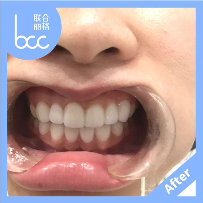 我的牙齿乱,黄,还有牙缝。也不明白自己为啥挨到了这么大了才来弄牙齿,以前都是怎么过来的哈哈  效果很快,牙齿变白了,整齐了,牙缝也不见了,今天真是个难忘的日子!  因为方案制定后,要根据我的牙齿情况定制牙贴面,因此需要一周左右的时间等候。得知自己的牙贴面制作完成时,兴奋极了。  奚医生做得非常仔细,刚做完上面的牙贴面,给大家来一张下上牙对比图