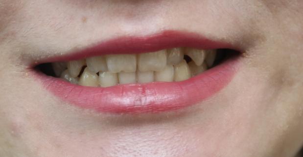 我的牙齿相对来说还是很好的,没有蛀牙,就是黄的厉害,每次笑的时候就会漏出一口小黄牙,无语至极,而且因为我的工作性质经常会见客户,说话什么的,牙黄就会非常影响美观,影响我的自信,有时候都不愿意开口说话了。
