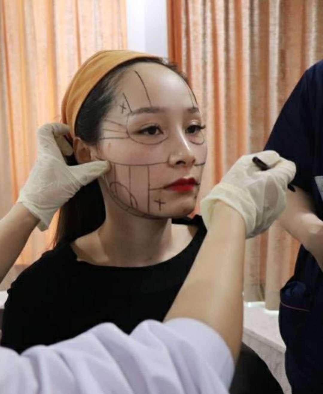 超声刀美容手术的过程并不复杂,前期护士会帮您敷麻药30分钟,清洁皮肤。接着开始操作。医生首先会在求美者脸上涂上类似B超凝胶的耦合剂,待探头贴合以后由医生操作慢慢滑动,每次间隔2mm,然后再移动。在手术的过程中,医生会根据求美者皮肤情况,调节仪器强度,并且观察超声波到达皮层深度的位置,以确保达到理想的疗效。超声刀美容治疗所需要的时间不会太过长,以全脸手术为例,只需要40分钟左右。                 适应肌肤出现皱纹的人群,脸部有鱼尾纹、额头纹、鼻唇沟、颈纹等多种皱纹 肌肤老化、松弛、下垂的人群下颚松弛,有双下巴、眼角下垂、眉尾下垂等人群