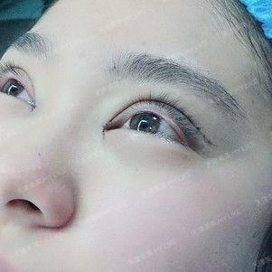 一直以来都是单眼皮,刚好有时间,也了解到美莱的口碑不错,种种因素凑在一起,就做了双眼皮。才做完线痕很明显,有些期待完全恢复后的样子。