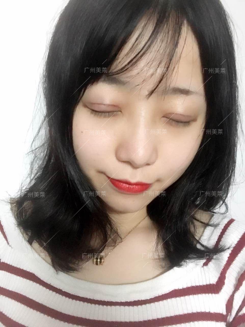 红肿已经明显比前两天消肿了很多,眼皮舒服了很多。割完双眼皮伤口不能碰水,洗头洗脸会不方便。所以提醒大家:术前一定要清洁好,不要化妆。吃东西要清淡,保持好心情多休息也有利于恢复。