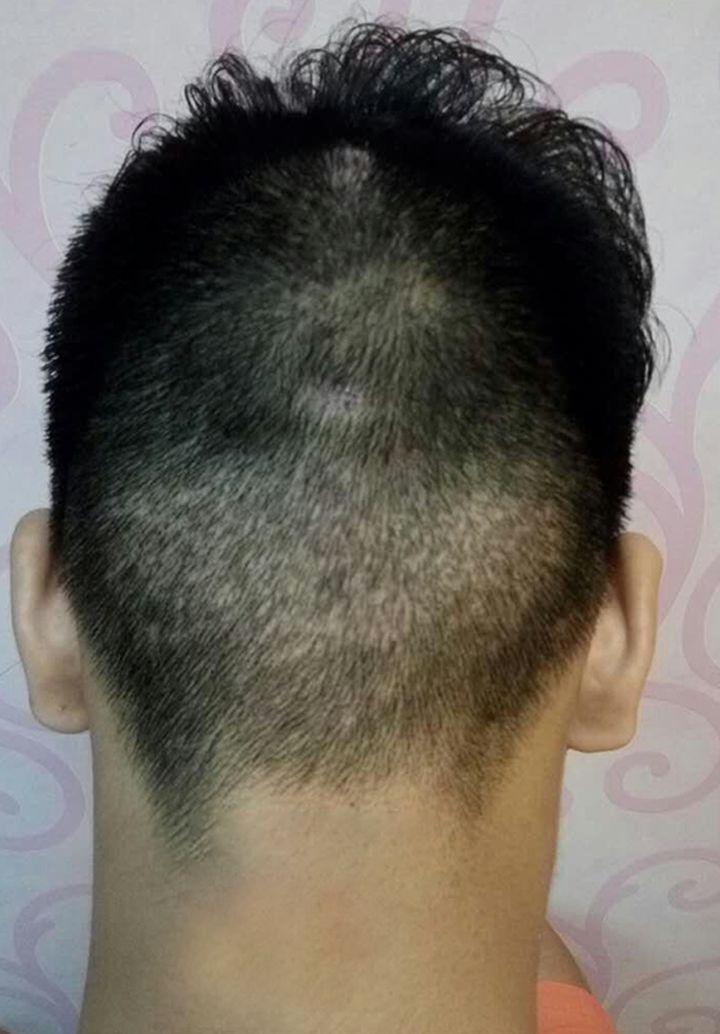 采取毛发移植微创手术,达到生发效果.
