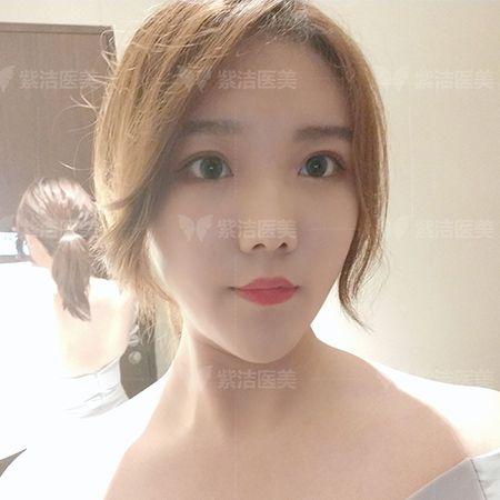 紫洁医疗美容全脸线雕全脸提升术后15天照片
