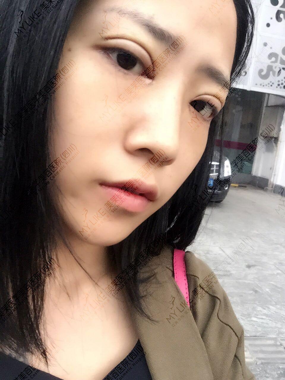 长期用双眼皮贴导致眼部松弛,眼皮拉耸,术后第一天有点肿没有淤青