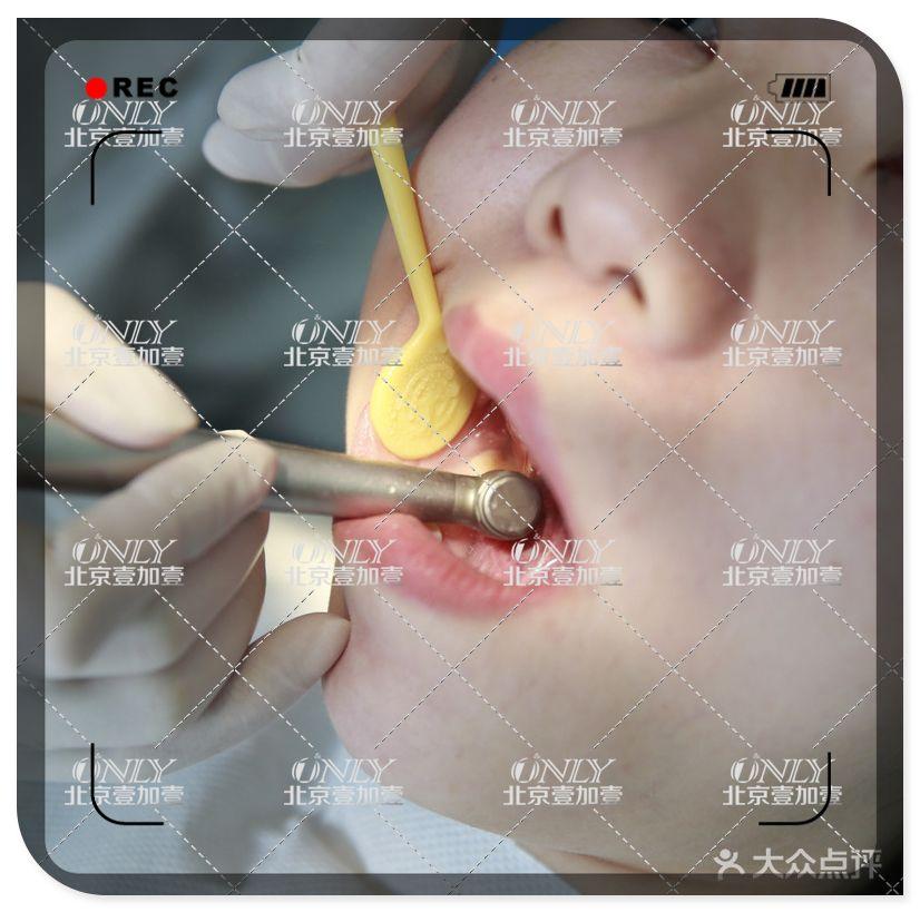 治疗当天我还是很紧张的,因为牙齿不整齐的问题真的是困扰了我好多年,终于还是下定决心来做个隐形矫正,虽然金属矫正的效果也不错还便宜但是女生毕竟爱美嘛,每天带着一副钢牙多影响美观啊,所以还是选择了时代天使隐形矫正。虽然价格比金属矫正贵了些不过戴上之后真的是完全不会影响美观。