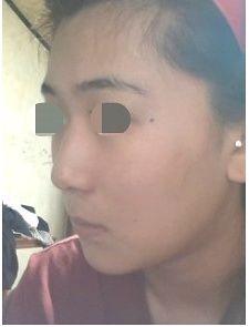 术后一个月,以前很担心拍侧面照,现在真的很满意!鼻影啥的完全不需要,这一次,真的成了女神级别了!