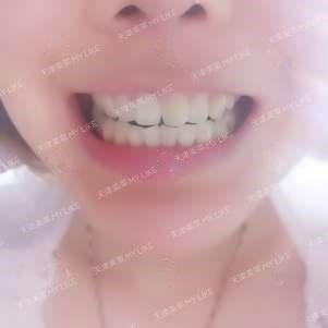 同事们,除了每天和我吃中午饭的知道我带牙套,其他人都不知道(说话有一点点不一样,但是前段时间拔牙肿了,说话就怪怪的,他们适应了)。隐形牙套真是个好东西,值得选择。