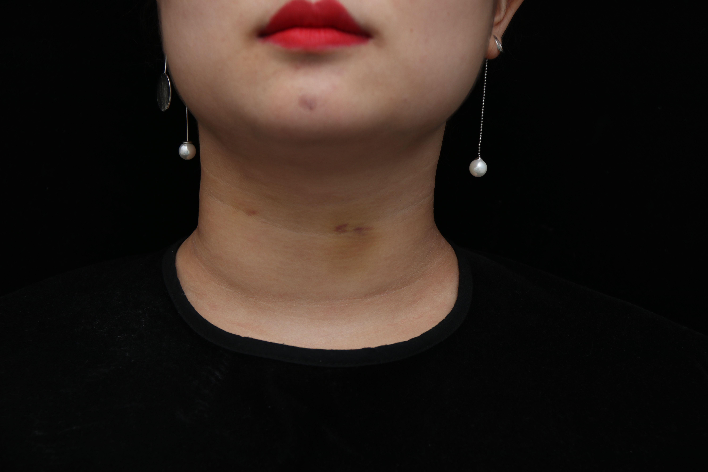 细胞活肤 去颈纹 即刻效果