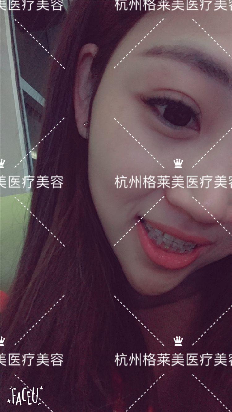 三个月啦,目前来说牙齿没有太大变化,因为本身牙齿也还好的,还没看到眼前一亮的变化。有个深刻的体会是做牙齿矫正在变美的同时是可以培养很多好习惯的,其中较重要的两点是戒零食和勤刷牙,因为没有好好刷牙是会导致牙龈萎缩的,难怪有些人在摘了牙套后说牙龈萎缩了,其实是因为矫正期间没有做好口腔清洁的缘故。我周末出门一定都会带上牙刷,吃完饭就找地刷牙,开始觉得有点尴尬,又让朋友等又占用洗手池什么的,但后来就好啦~刷牙顶多也就十来分钟,有人洗手就让开,所以这都不能成为偷懒的借口哦!别的不敢说,讲卫生谁也比不过我哈哈