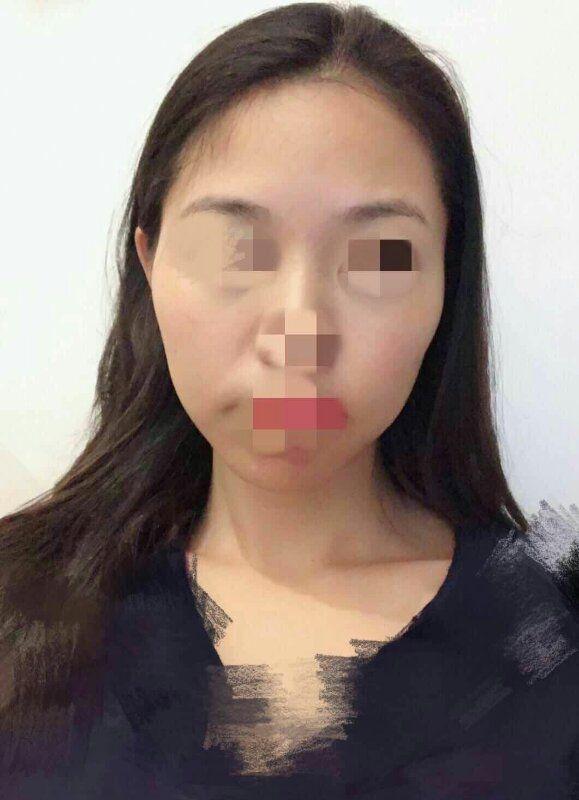 1、脸部依然肿胀,鼻子也肿,眼袋也肿胀、眼角还有淤血(医生说是填了泪沟),肿胀处已经开始出现淤黄色了 2、针眼结痂脱落了2处了,看不出伤口 3、皮肤的死皮角质慢慢脱落,轻轻一搓就搓掉了,显得皮肤光滑细腻 4、下巴也填了脂肪,之前还硬邦邦的,现在已经开始软了,另外下巴底部也有个小结,摸着疼,去艾妍医院换药时的医生说那有个淋巴,因为下巴填了脂肪,现在还有点堵,过几天就会消掉了 5、太阳穴的部位摸上去有一点点轻微的疼,第五天的时候太阳学稍微没有第一天的饱满,估计是消肿了