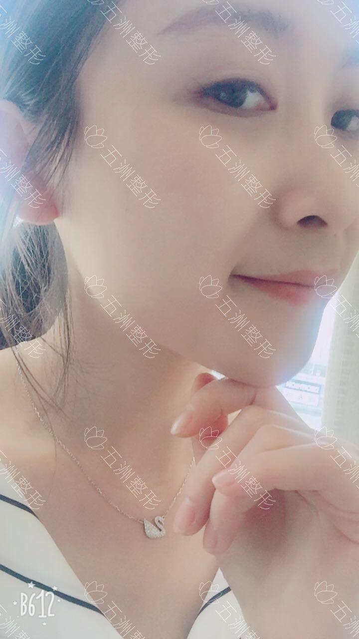 注射瘦脸针第7天了,前两天有些肌无力的症状,大概第4天就没什么感觉了,然后瘦脸的效果这两天也开始慢慢体现了,下巴尖了一点点,不是太明显问过医生一般要半个月就会明显了,但是瘦摸到咬肌部位还是软了一点了。
